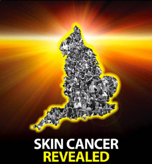 Skin Cancer Revealed